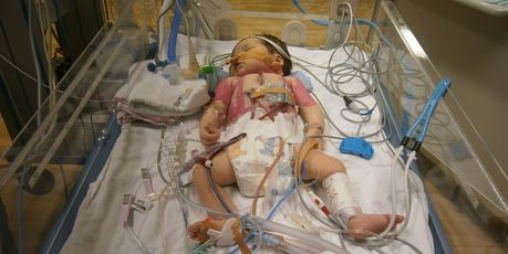 Meila was born with several severe congenital heart defects.