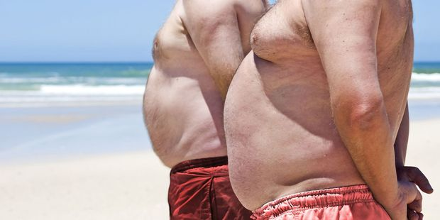Overweight and obesity was closely linked to 10 common cancers, researchers said. Photo / 123RF