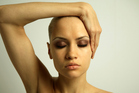 Alopecia is a common autoimmune disease that can lead to total hair loss. Photo / Thinkstock
