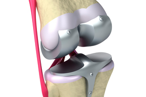 Increasing obesity may be behind an increased demand for replacement knees. Photo / Thinkstock