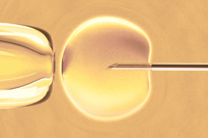 IVF is not a panacea for age-related fertility problems. Photo / Thinkstock