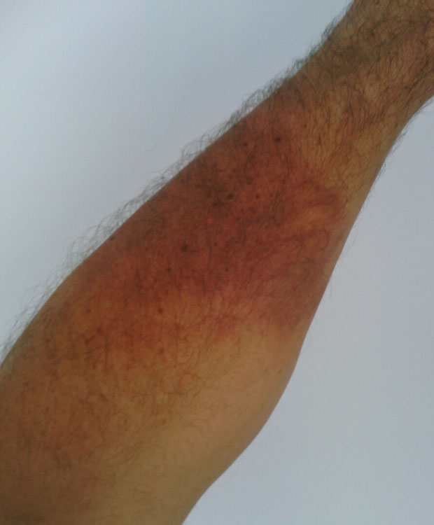 The hot water left this scald on a punter's arm. Photo / supplied