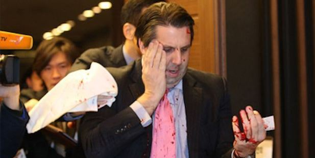 US Ambassador to South Korea Mark Lippert after the attack. Photo / AP