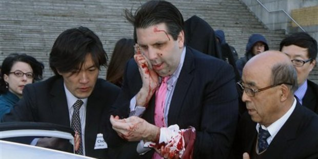 US Ambassador to South Korea Mark Lippert gets into a car to leave for a hospital in Seoul, South Korea. Photo / AP