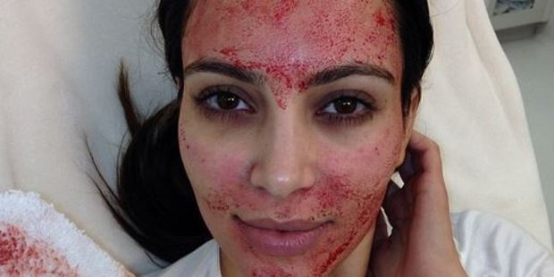 Kim has her own blood extracted then injected into her face in a bid to stay looking youthful. Photo / Instagram