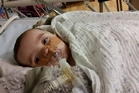 Devon Hacche, 8 months, faces years of treatment and may never talk or breathe independently.