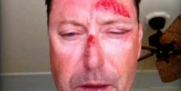 Australian golfer Robert Allenby posted a picture of himself to social media 17 January 2015 after being abducted and beaten whilst in Hawaii.