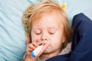 Measles causes fever and rash and in severe cases can lead to pneumonia or brain swelling, sometimes fatal. Photo / Thinkstock