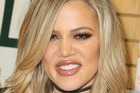 Khloe Kardashian says her nose slimmed down when she lost weight. Photo / Getty