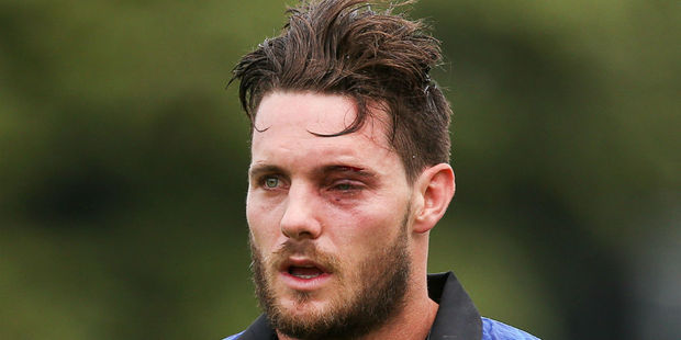 Mitchell McClenaghan after suffering his eye injury. Photo / Getty