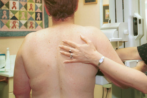 Mammograms may also provide an insight into heart disease in women. Photo / Lynda Forrest