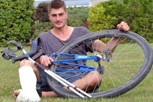 Nelson man Ethan Bruce after his epic 106km mountain bike race on a unicycle and with a broken leg. Photo / Simon Bloomberg