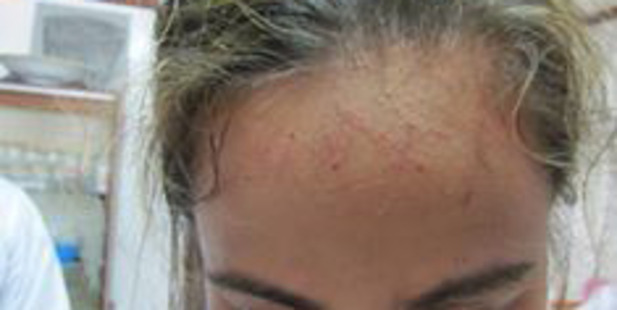 There are claims she bore injuries to her side and forehead. Photo / Supplied