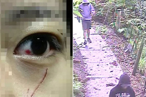 Left, One victim was left with a deep cut under her eye after an attack in Albert Park. Right,  CCTV footage shows the offenders in an attack near Unitec in Mt Albert.