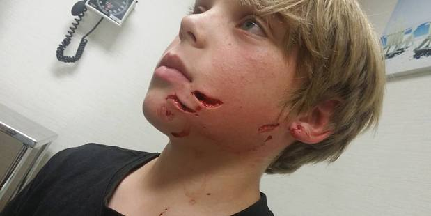 The Waiuku boy is recovering in Middlemore Hospital after the Easter Monday attack. Photo / Supplied
