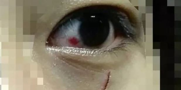 One victim was left with a deep cut under her eye after an attack in Albert Park. Photo / Supplied