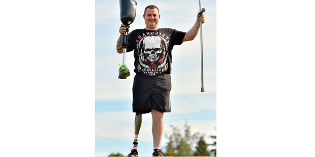 Chris Campbell of Otago has received the latest, greatest, state-of-the-art, carbon-fibre prosthetic leg. Photo / Otago Daily Times