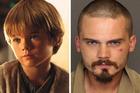 Actor Jake Lloyd starred as  Anakin Skywalker in Star Wars: The Phantom Menace as a child.