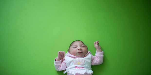 Loading Sophia, who is two weeks old and was born with microcephaly. Photo / AP