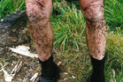 HOOKED: No, these are not bugs - this Wanganui tramper's legs are covered with the dreaded hook grass. PICTURE / SUPPLIED