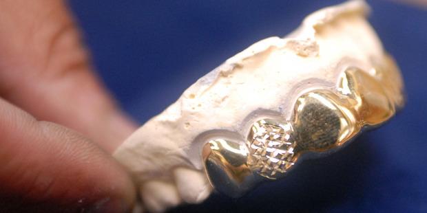 Customized set of gold teeth, shown in 2006 at Kwik Fix in Birmingham, Alabama. Photo / Bloomberg