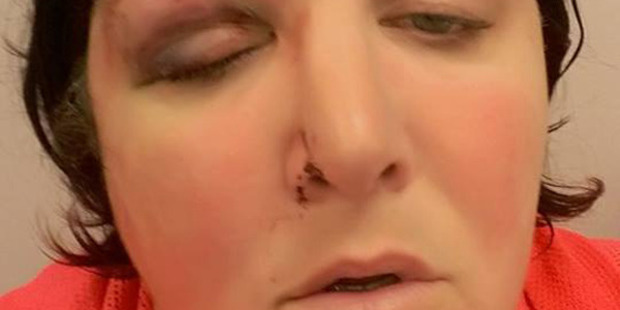Sloane Coleman was hit by a rock in her eye while driving to her Picton home. Photo / Supplied