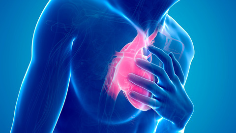 Almost half of heart attacks are silent; they're still risky