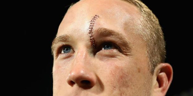 Twenty six stitches has given Rabbitohs forward Jason Clark his 15 minutes of fame in the United States. Photo / Getty Images.