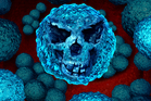 Experts warn superbugs will kill more people than cancer by 2050 unless world acts now. Photo / iStock
