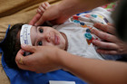 Three-month-old Esther Kamilly has her head measured by Brazilian and US health workers in Joao Pessoa, Brazil. Photo / AP