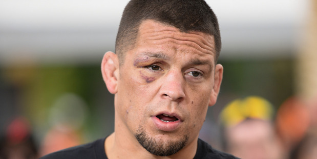 Loading Nate Diaz. Photo / Getty Images