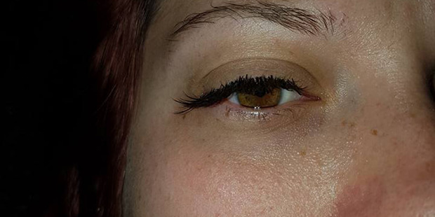 Sarah Tyson of West Auckland received eyelash extensions that went wrong from a salon in West Auckland. Photo / Supplied