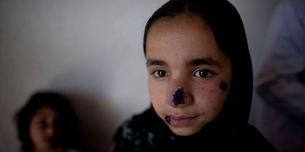 Between 2000 and 2012, there were only six reported cases of cutaneous leishmaniasis in Lebanon, but in 2013 alone there were 1,033 cases. Photo / Getty