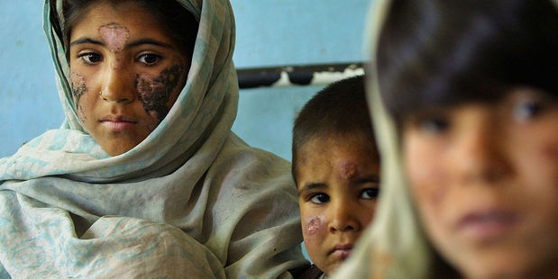 Cutaneous leishmaniasis is an issue in war-torn areas. These children in Afghanistan were affected in the early 2000s. Photo / Getty