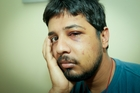 ATTACKED: Pizza delivery man Shashi Sharma was attacked by teens. PHOTO/FILE