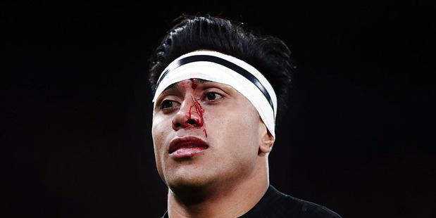 Malakai Fekitoa of New Zealand has his head patched up during the International Test match between the New Zealand All Blacks and Wales. Photo / Getty Images.