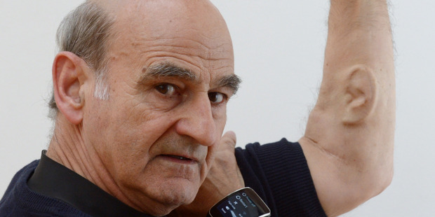 Loading Stelarc  shows off his Ear on Arm art project. Photo / Otago Daily Times