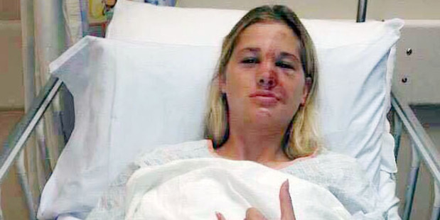 The surfing accident caused Michaelee-Jayne McDonald to break her jaw, nose and have about 80 internal stitches. Photo / Christchurch Star