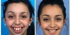 Watch: Watch: Teenager's amazing transformation