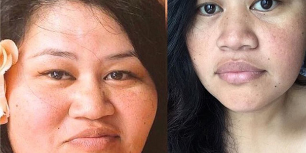 Emmes Ah Young of Auckland has dropped 80kg in just under three years picture. Photo / Supplied