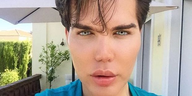 Rodrigo Alves says that he opts for surgery over exercise. Photo / Instagram / rodrigoalvesuk