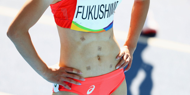 Chisato Fukushima sports some odd spots on her stomach. Photo / Getty