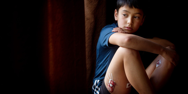 Loading Cameron Bidois, 8,  has six bite wounds on his legs and side - four of them deep enough to need paper stitches.  Photo/Stephen Parker