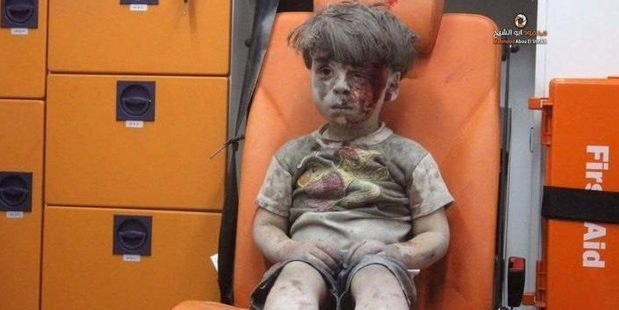Omran was one of five children wounded in an airstrike in Aleppo. Photo / Aleppo Media Centre