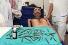 Police constable Surjeet Singh, lies under a table displaying the 40 knifes removed from his stomach recuperates in a hospital in Amritsar, India. Photo / AP