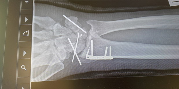 An x-ray showing the screws and plate used to repair Marc Fraser's damaged right wrist.
