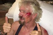 """Billionaire Richard Branson has revealed he has been in a serious bike accident in which he thought he """"was going to die"""". Photo: @richardbranson / Twitter"""