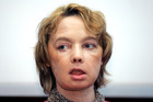 Isabelle Dinoire, the woman who received the world's first partial face transplant has died aged 49. Photo / AP