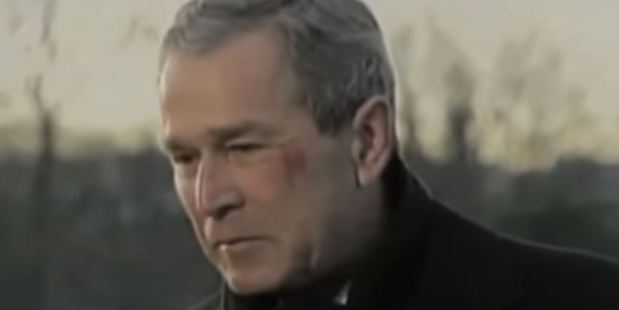 President George W. Bush suffered a face injury after fainting while choking on a pretzel.
