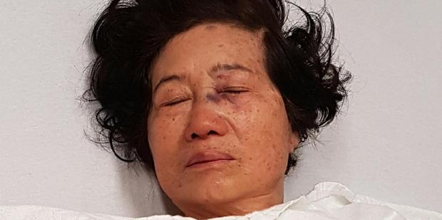 Loading Nancy Voon lies in her bed in intensive care at Auckland City Hospital. Photo / Supplied